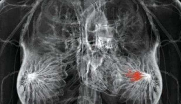 chemio pericolosa può peggiorare il cancro